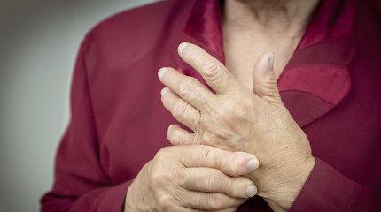 Gydytoja reumatologė: tik liaudies medicina sąnarių neišgydysite