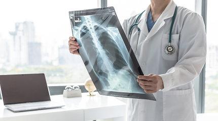 Klastinga liga, sukelianti negrįžtamus pakitimus plaučiuose: simptomai – dusulys, nuovargis