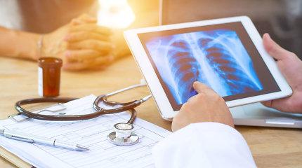 Pulmonologė apie daugiausia gyvybių nusinešantį plaučių vėžį: nevenkite pasidaryti rentgeno nuotraukos