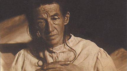 """""""Aš save pamečiau"""": Auguste Deter – pirmasis žmogus, kuriam buvo diagnozuota Alzheimerio liga"""