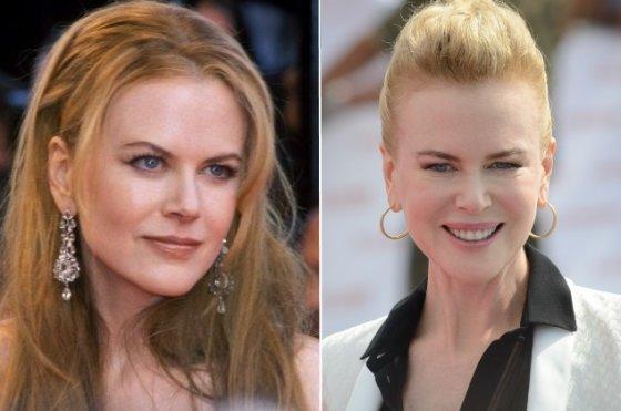 """""""Scanpix""""/wikimedia.org nuotr./Nicole Kidman 2001-aisiais ir dabar"""