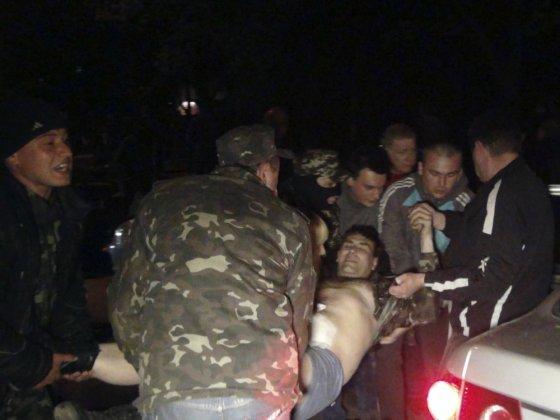 """""""Reuters""""/""""Scanpix"""" nuotr./Vienas iš sužeistųjų per separatistų susidūrimus su Ukrainos VRM pajėgomis Mariupolyje"""