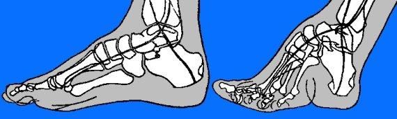 wikimedia.org nuotr./Kairėje – įprasta pėda, dešinėje – deformuota pėda