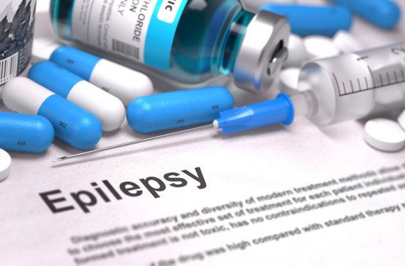 123RF.com nuotr./Diagnozė – epilepsija.