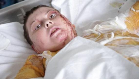 "AFP/""Scanpix"" nuotr./Kateryna Handziuk ligoninėje"