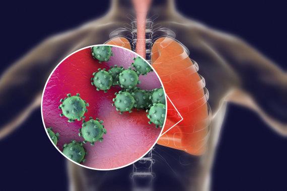 123RF.com nuotr./Koronavirusas paveikia kvėpavimo takus