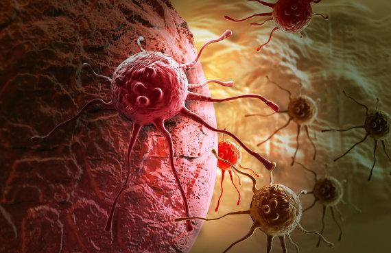 Fotolia nuotr./Vėžys