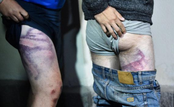 """AFP/""""Scanpix"""" nuotr./Sulaikytieji rodo sumušimus"""