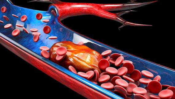 123RF.com nuotr./Kraujo krešulys