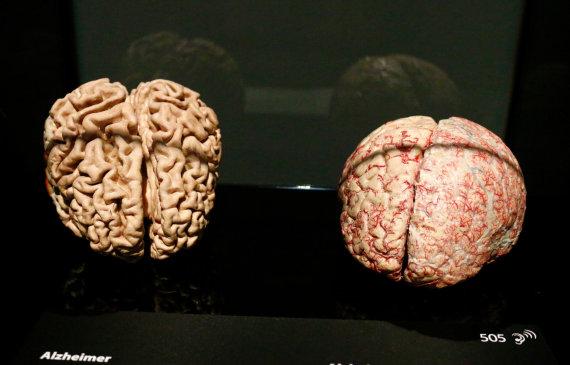 Vida Press nuotr./Sveikos ir Alzheimerio ligos paveiktos smegenys