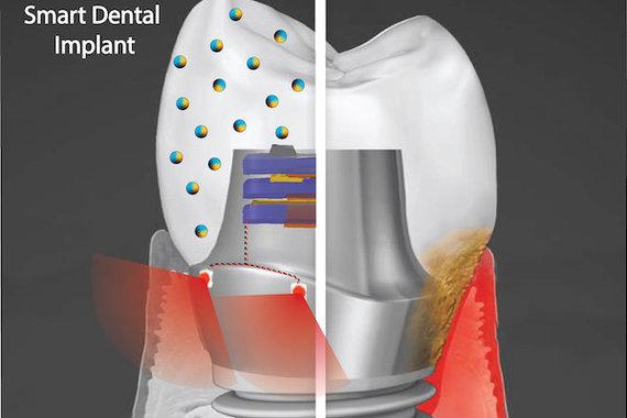 Albert Kim, Templio universitetas/Išmanusis dantų implantas galėtų patobulinti dabartinius prietaisus, nes jame būtų panaudotos biologinei plėvelei atsparios nanodalelės