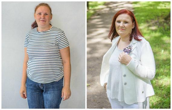 Tomo Janulevičiaus nuotr./Ramutė Selevienė prieš ir po pokyčių