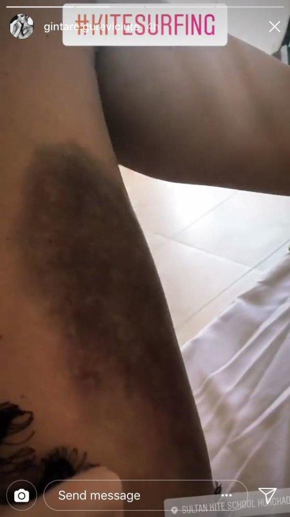 Stop kadras/Gintarės Gurevičiūtės kojos