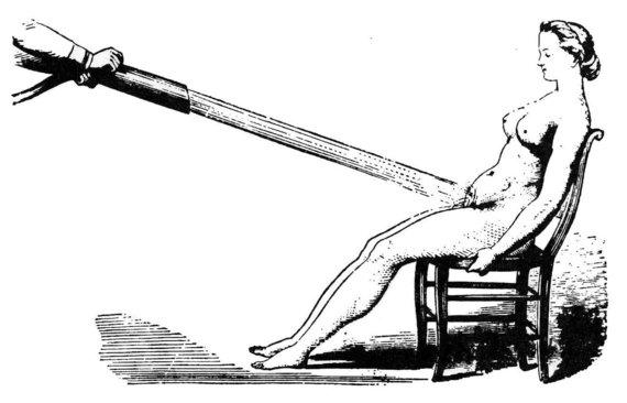 """Wikimedia Commons nuotr./Vandens masažas - vienas būdų """"isterijai"""" gydyti"""