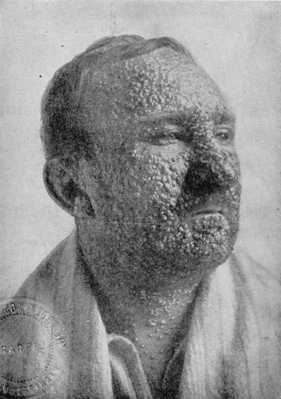 Wikimedia Commons nuotr./Raupais sergantis žmogus, 1912 m.