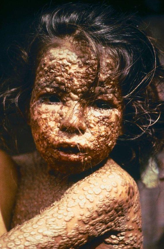 Wikimedia Commons / Public Domain nuotr./Raupais sergantis vaikas Bangladeše. Matyti raupams būdingi šašai