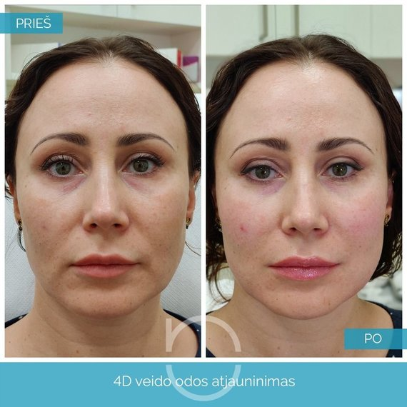 """Nordclinic"" nuotr./4D veido odos atjauninimo procedūros rezultatai"