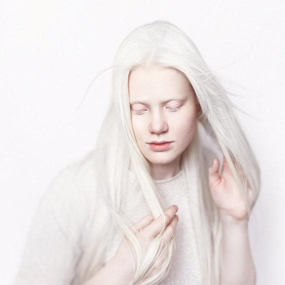 123RF.com nuotr./Mergina albinosė