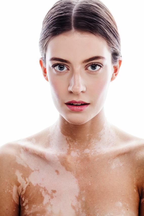 123RF.com nuotr./Moteris su baltme – odos liga