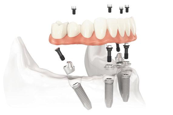 Projekto partnerio nuotr./Dantys ant įsriegtų implantų ne tik atrodo, bet ir tarnauja kaip tikri