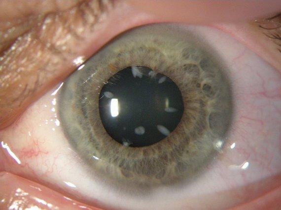 gyd. A. Makselio nuotr. /Kataraktos pažeista akis