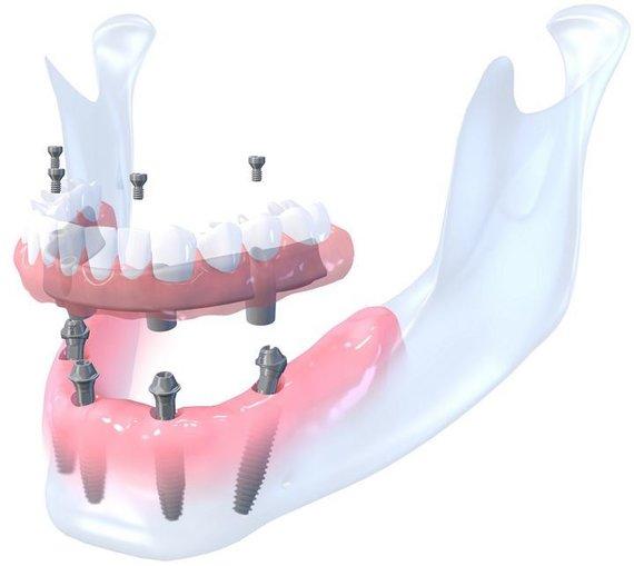 Dantų atkūrimas su 4 implantais