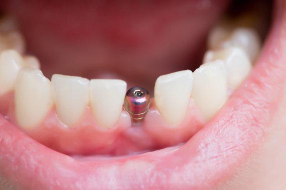 123RF.com nuotr./Dantų implantas