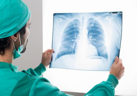 Nacionalinio transplantacijos biuro nuotr./Plaučių transplantacija