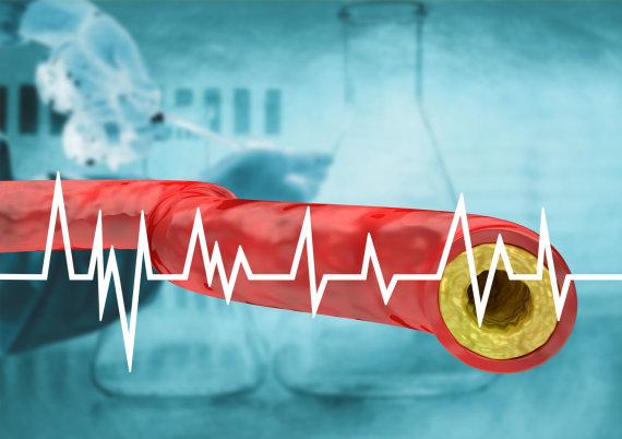123RF.com nuotr./Cholesterolis blogina kraujotaką
