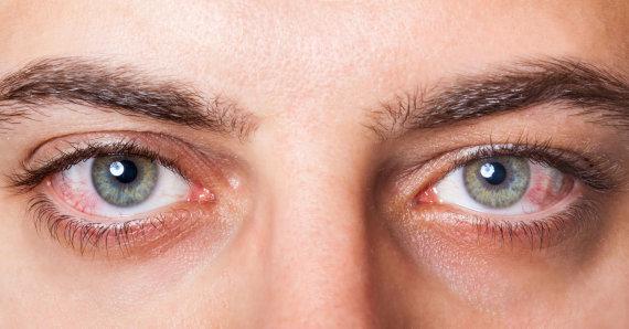 123RF.com nuotr./Paraudusios akys