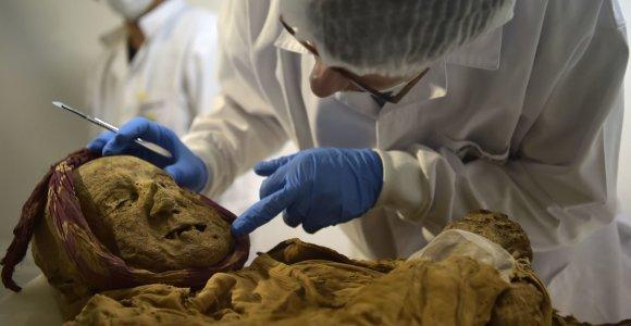 Ilgai mokslininkus intrigavusią paslaptį padės atskleisti XVI a. mumija