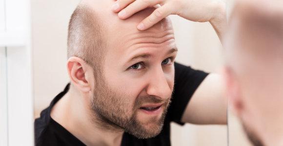 Kodėl vyrai plinka? Tikslaus atsakymo mokslininkai neturi, bet sprendimą problemai jau ruošia