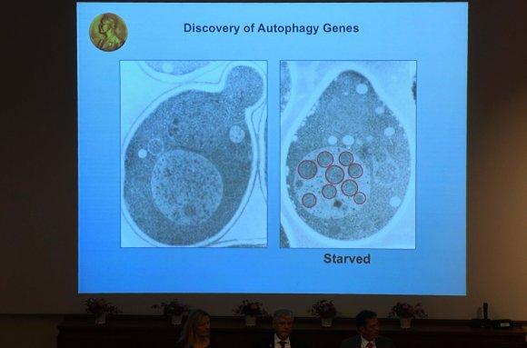 """AFP/""""Scanpix"""" nuotr./Už autofagijos mechanizmų atradimus Nobelio medicinos premija skirta japonui Yoshinori Ohsumi"""