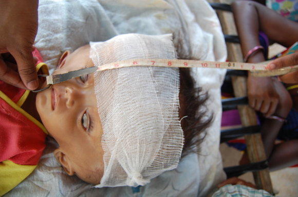 Caters News Agency/Scanpix/Vandene serganti mergaitė