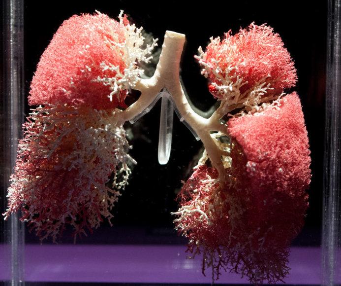 """The Human Body Exhibition"" – plaučiai"