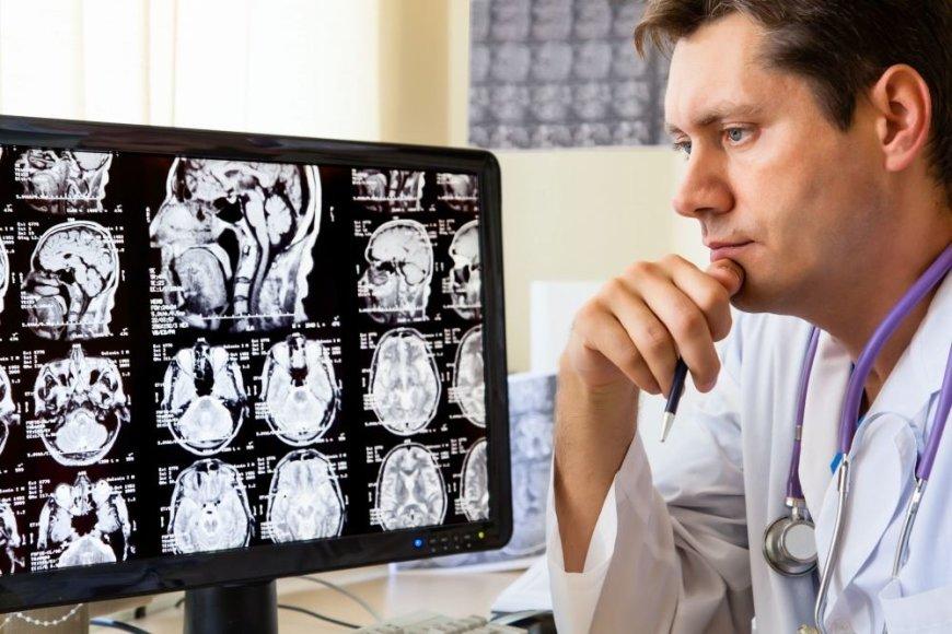 Daktaras žiūri į galvos rentgeno nuotraukas