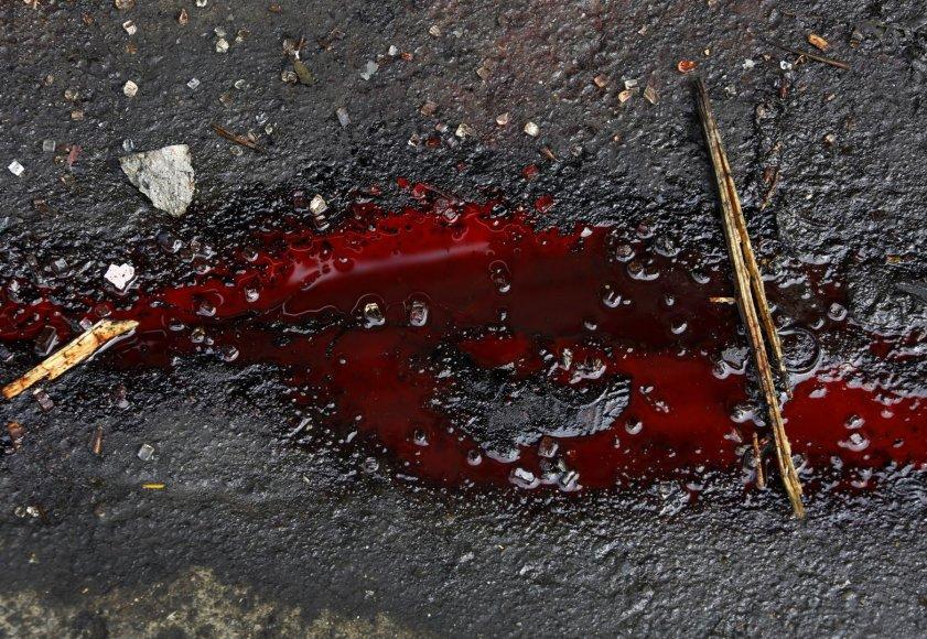 Kraujas ant kelio