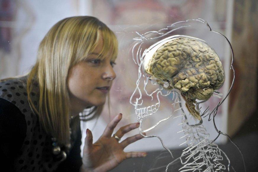 Žmogaus smegenys