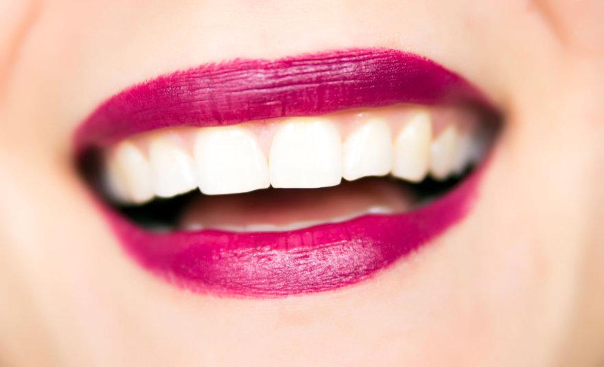 Balti dantys