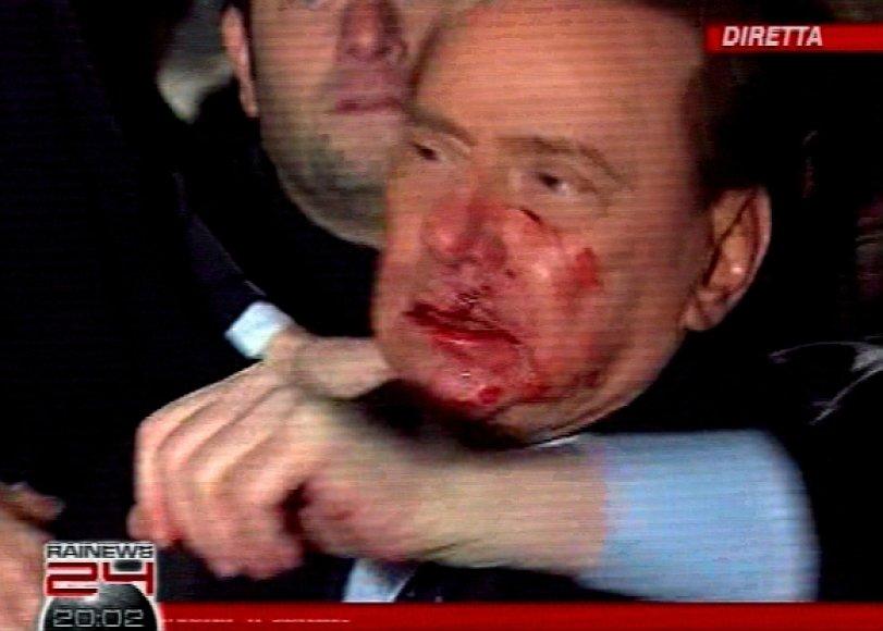 Užpuolikas smarkiai sužalojo Italijos premjero veidą.