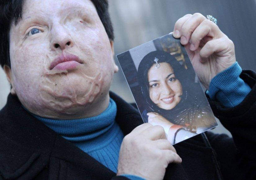 Ameneh Bahrami laiko nuotrauką, kurioje ji užfiksuota prieš užpuolimą, kai jos veidas ir akys buvo apipiltos rūgštimi.