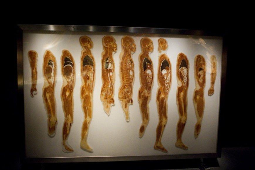 """Parodos """"The Human Body Exhibition"""" eksponatas"""