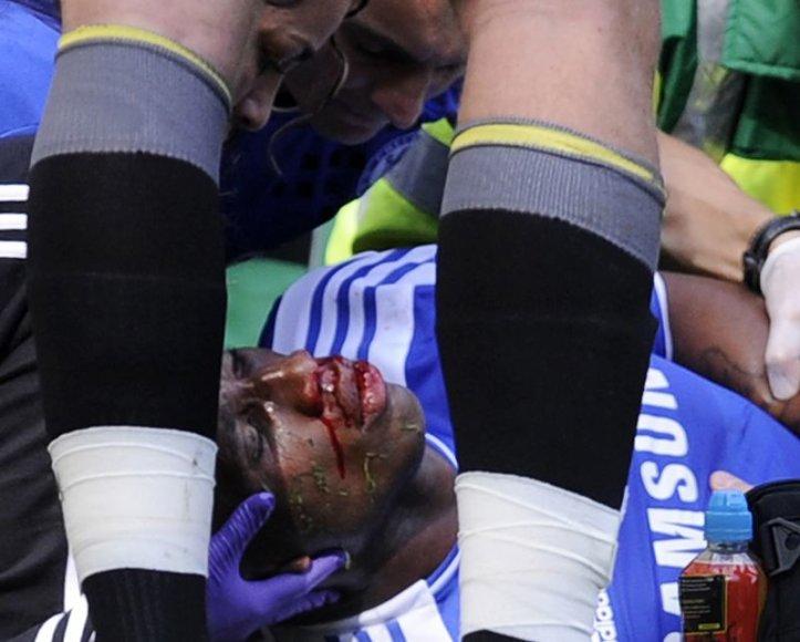 Didier Drogba patyrė nedidelį smegenų sutrenkimą