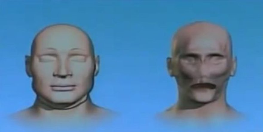 Jungtinėse Valstijose pirmą kartą sėkmingai atlikta viso veido persodinimo procedūra