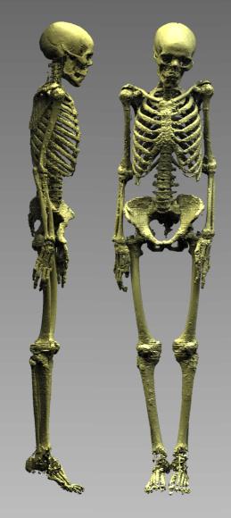 """Rekonstruota 3000 metų mumija. """"Baltic Orthoservice"""" nuotr."""