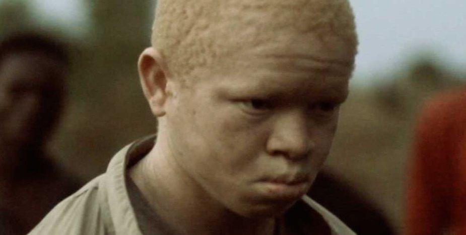 Albinosų berniukas