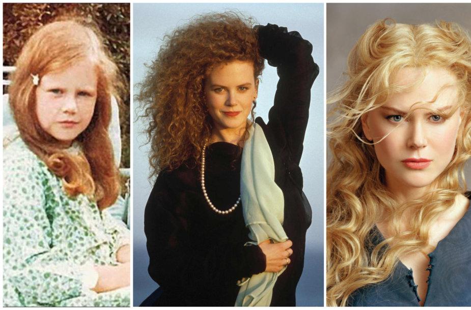 Nicole Kidman išvaizdos pokyčiai