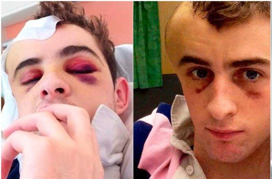 Brianas Toomey krito nuo žirgo, jis praleido ligoninėje 157 dienas.