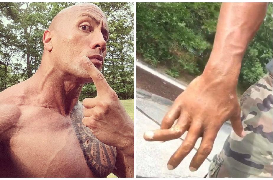 Dwayne'as Johnsonas pajuokavo susilaužęs pirštą