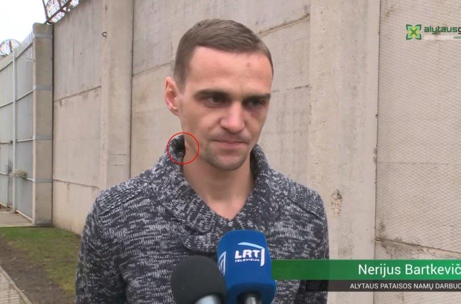 Nerijus Bartkevičius sužeistas nežymiai